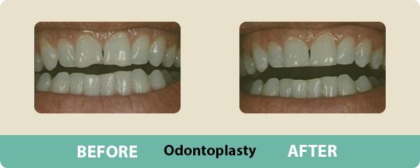 Before and After Odontoplasty