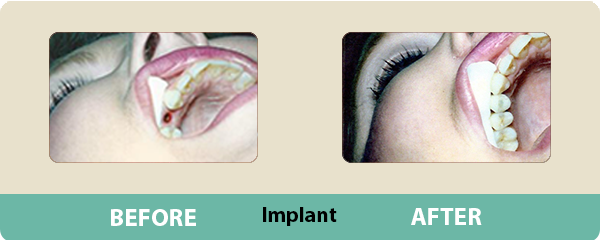 Before and After Implants