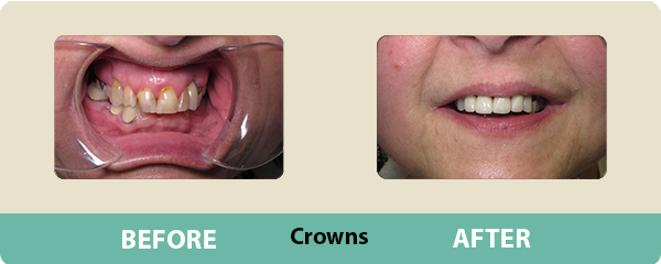 Before and After Crowns 2