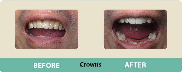Before and After Crowns 3