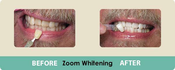 Before and After Zoom Whitening 2