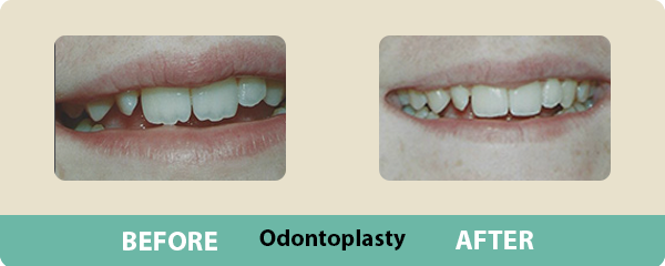 Before and After Odontoplasty 2