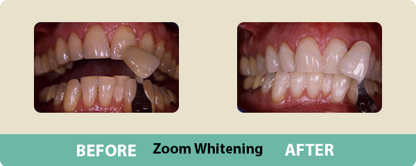 Before and After Zoom Whitening