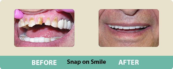 Before and After Snap on Smile 3