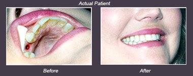 Dental Implant results