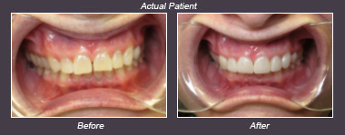 veneers- before and after